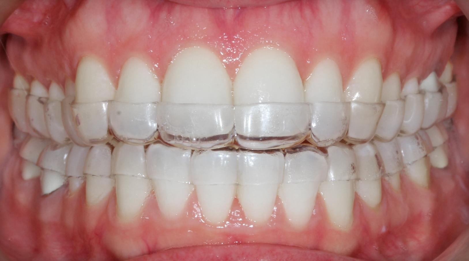 Bracket Systems | Roncone Orthodontics